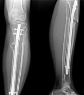 la storia di una gamba radiograf